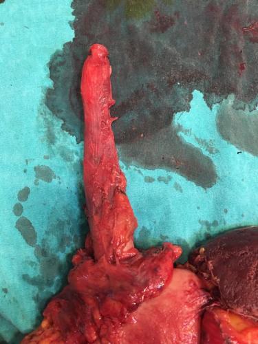 Mideden kaynaklanmış #YemekBorusu, #Dalak ve #Pankreas'ı tutmuş çıkarılması #zortümör